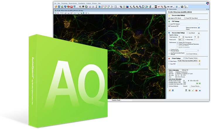 AutoQuant X3 Deconvolution Software