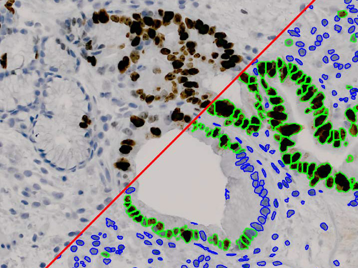 Media Cybernetics Image Analysis Solutions and Applications: Pathology (Cell Classification)