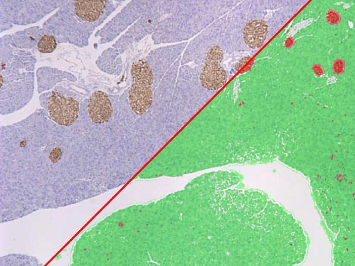 Media Cybernetics Image Analysis Solutions and Applications: Pathology (Percent Area Staining)