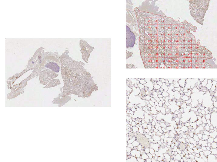 Media Cybernetics Image Analysis Solutions and Applications: Pathology (Whole Slide Analysis)